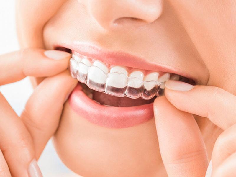 mandri10-dentista-carrousel_10